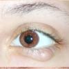 Інші хвороби очей (помутніння кристалики, коньюктивит, неврит зорового нерва, гнійне запалення очей)