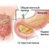 Хронічний панкреатит - симптоми, лікування, рецепти